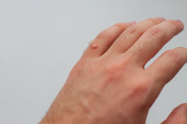Toupeira - doenças de pele