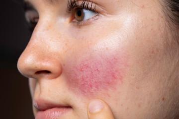 Rosácea - doenças de pele