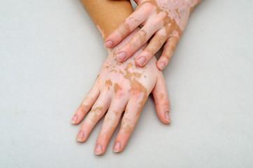doença de pele -vitiligo