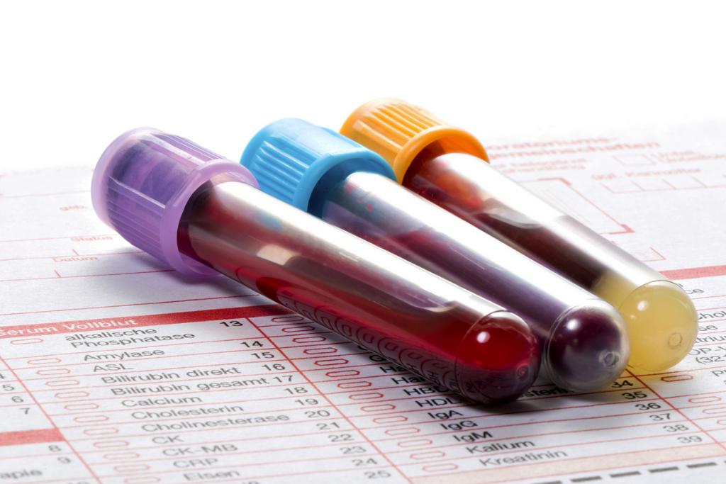Como conferir se o resultado de exame de sangue está normal?