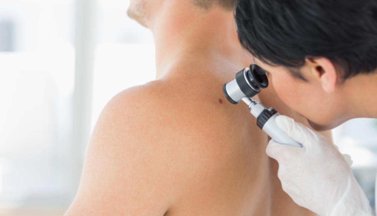 O que esperar da consulta com dermatologista e quando comparecer a uma?