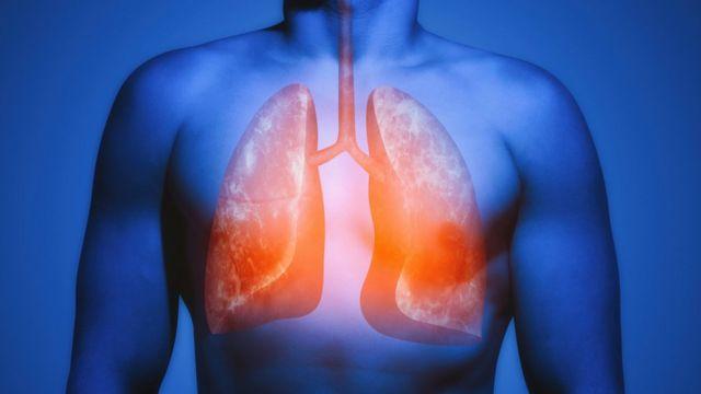 pulmão com coronavírus