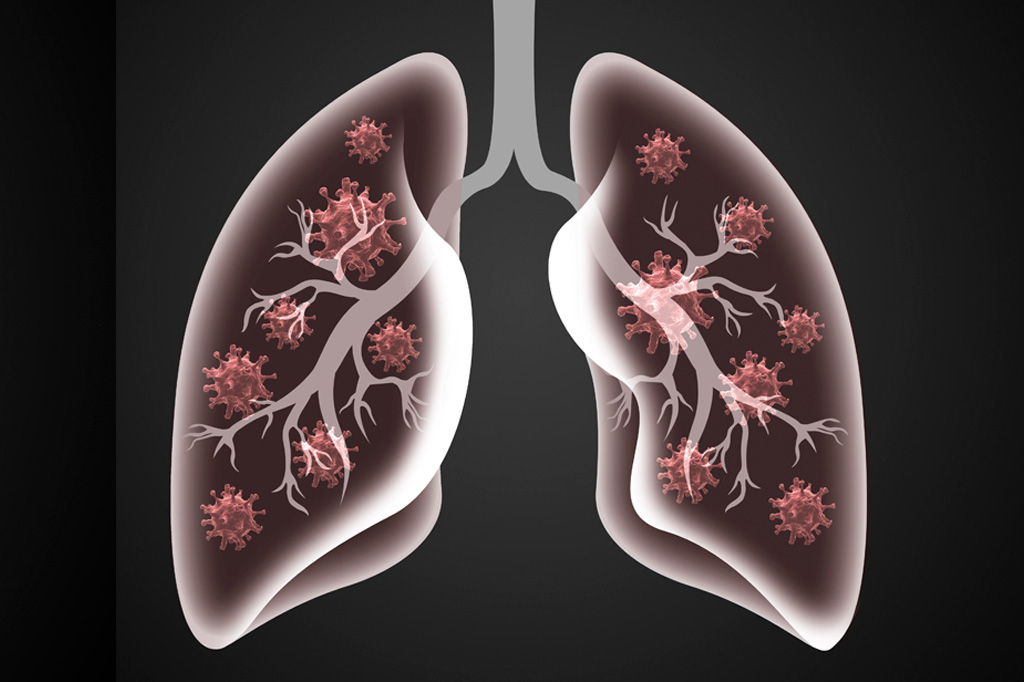 O que significa estar com o pulmão comprometido?