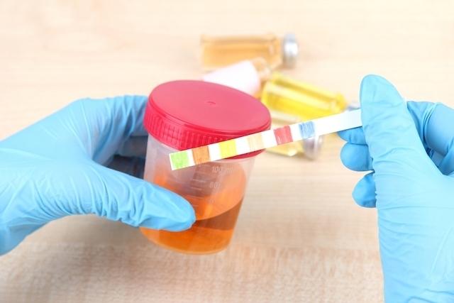 causas hemoglobina na urina